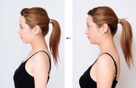 顔、体の骨を切る事なく手技により美しくスリムにする最先端の技術です。