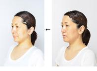 顔が老けてくるのは頭や顔、あごの骨が長年の間に前面及び下方向に垂れ下がり広がってくるからです。それによって、顔全体の血行が悪くなり、肌の垂れ下がり、脂肪がつき顔が大きくなり、年を取った顔になって行くのです。