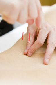 ◆鍼灸治療について◆