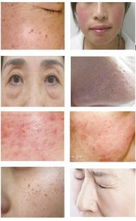 20~50代の女性にアンケート調査をした結果、90%以上の方が上記のお悩みを何かしら抱えているのが実状です。 皆様がお悩みとする肌トラブルを「ほぐしやさん」で改善してみてはいかがでしょうか?  1. シミ     5. 赤ら顔      2. シワ     6. 毛穴の開き・汚れ  3. ニキビ    7. 肌荒れ  4. そばかす   8. 乾燥肌