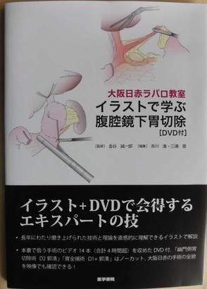 大阪日赤ラパロ教室 イラストで学ぶ腹腔鏡下胃切除術