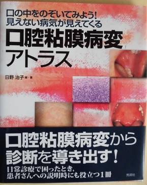 口腔粘膜病変アトラス