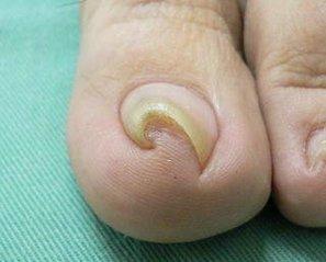 N法による巻き爪手術~手術の痛みについて~